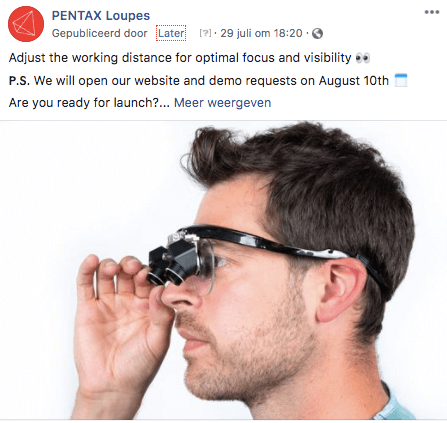 teaser post pentax loupes